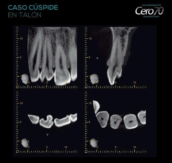 blog CASO 30