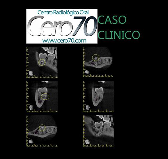 blog CASO 24