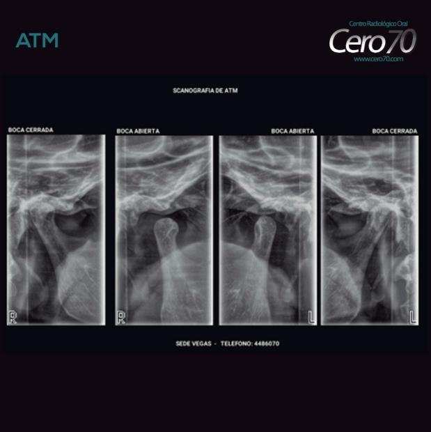 radiografia atm
