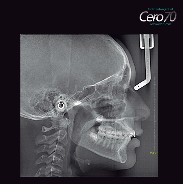 radiografia cefalica lateral trazado cefalometro